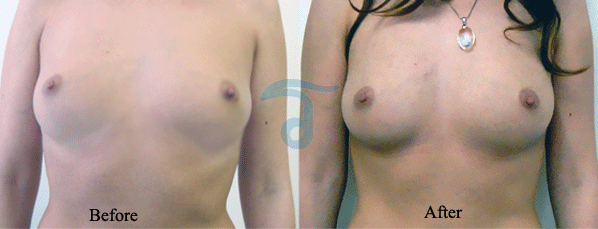 all-natural-breast-enhancement