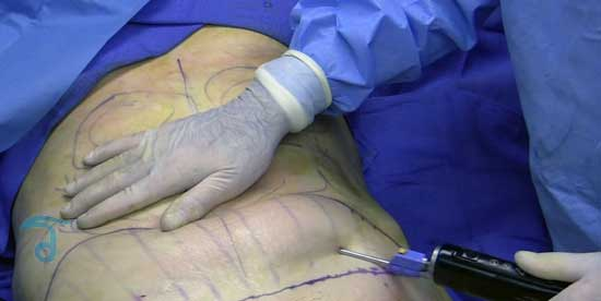 Center For Safe And Affordable Liposuction Solutions