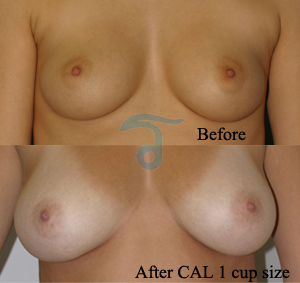 stem-cell-breast-augmentation-1-size